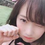 夢アド京佳がワタナベマホトの同棲彼女?顔の青あざ隠し恋人A子確定か!